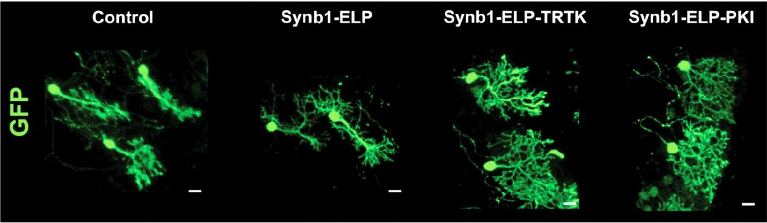 Purkinje neurons affected by SCA1 lose their branches (control). ELP on its own doesn't fix the damage (Synb1-ELP), but when a therapeutic is attached (TRTK and PKI), the neurons recover.