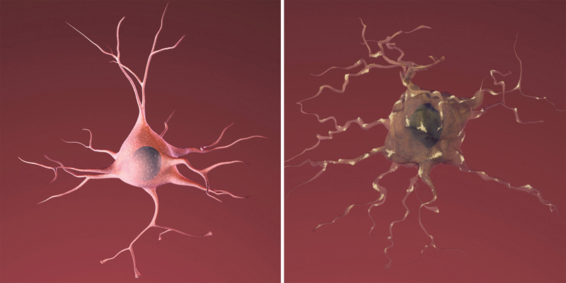 On the left is a healthy neuron. On the right, a neuron damaged by amyloid plaque, a sign of Alzheimer's Disease. (Image credit: National Institute on Aging)