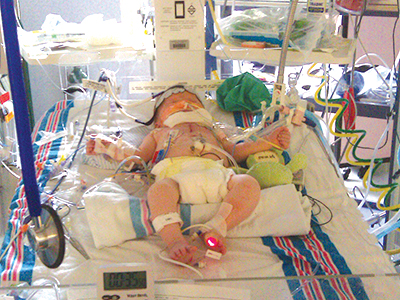 Cayson Sanderford is shown in 2011 after surgery at Batson Children's Hospital.
